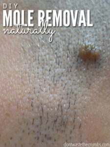 Illustration of Management Of Live Moles In The Armpits?
