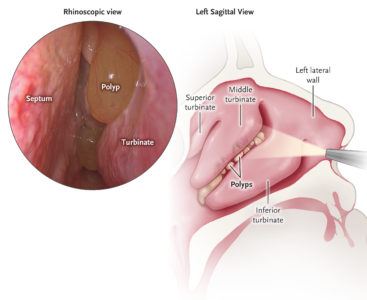 Illustration of Loss Of Olfactory Postoperative Polyps And Sinuses?
