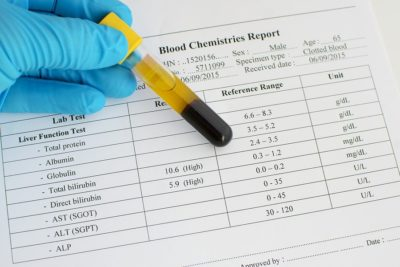 Illustration of The Result Of Urine Examination Has Positive Blood 1, What Does It Mean?