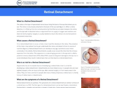 Illustration of Causes Retinal Detachment After 2 Operations?