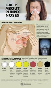 Illustration of Causes Of Discharge Of Nasal Mucus Are Different Colors Between Right And Left?