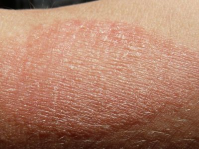 Illustration of How To Deal With Dry Skin, Peeling And Itching That Does Not Go Away?