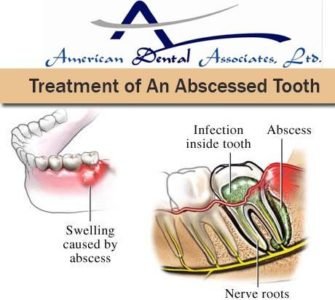 Illustration of The Cause Of Throbbing Pain In The Gums That Does Not Go Away Even Though It Has Been Treated?