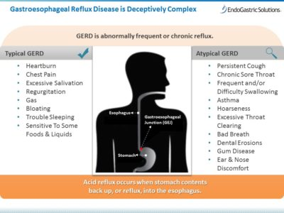 Illustration of How To Deal With Chronic GERD