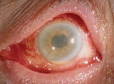 Illustration of Handling After Cataract Surgery?