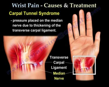 Illustration of Pain In The Left Wrist