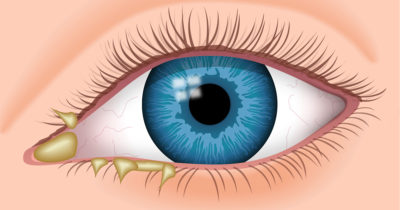 Illustration of Red Eyes Accompanied By Eye Discharge And Decreased Vision After Exposure To Chemicals?