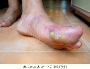 Illustration of The Cause Of Pus Appears On The Swollen Feet Due To Gout?