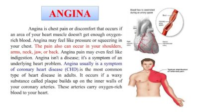 Illustration of Relationship Of Chest Pain With Angina Pectoris?
