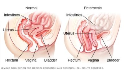 Illustration of How To Deal With A Drop In Intestine