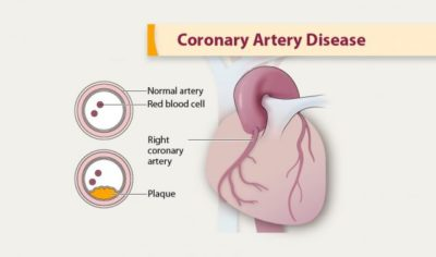 Illustration of Can Coronary Heart Disease Completely Recover?
