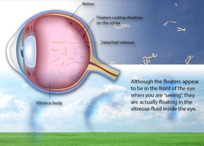Illustration of The Cause Of The Appearance Of Clear Membranes In The Eyes Accompanied By Swollen And Itchy Eyes?
