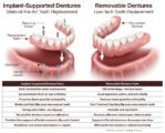 Can Dentures Be Installed Directly After Removal?