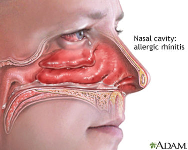 Illustration of Effects Of Rhinitis On The Skin Around The Nose?