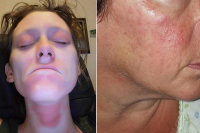 Illustration of Burning Facial Skin After Using Facial Cleanser?