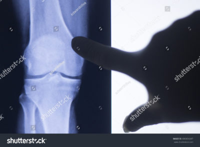 Illustration of X-ray Examination Results In Patients With Joint Pain?