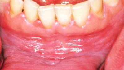 Illustration of A White Layer On The Gums That Feels Pain After Removing Molars?