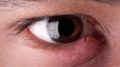 Illustration of Eye Pain When Flashing There Are Small Bumps In The Eyes?