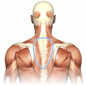Illustration of Pain In The Upper Back?
