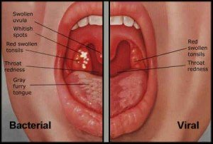 Illustration of Difference In Sore Throat Due To Tonsillitis And Inflammation Of The Throat?