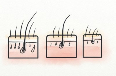 Illustration of How To Stop The Production Of The Hormone DHT That Causes Hair Loss And Baldness?