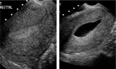 Illustration of Increased Vaginal Discharge After The Saline Infusion Sonohysterography Procedure?