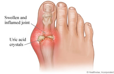 Illustration of The Cause Of Foot Pain Until Swelling In Gout Sufferers?