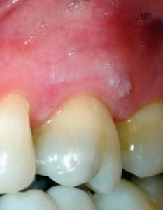Illustration of Wisdom Teeth Are Rough When Touched With The Tongue?