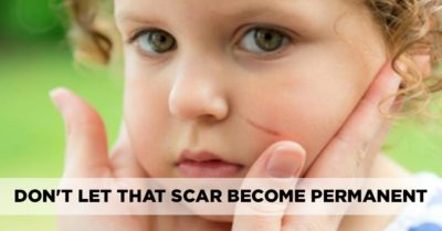 Illustration of The Scars On Children Turn Red When They Have A Fever?