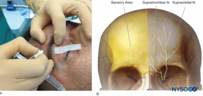 Illustration of Do Nerve Injections Need To Be Mixed?