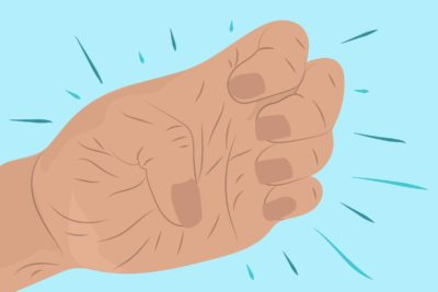 Illustration of The Right Hand Cannot Clench, Feel Weak And The Little Finger Aches?