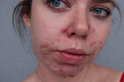 Illustration of Overcoming Acne That Appears Suddenly But Does Not Improve?