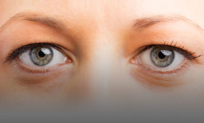Illustration of Cause The Right Eye Is Minus And Then Left Is Plus?