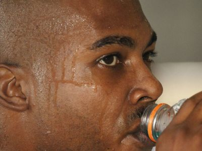 Illustration of The Cause Of Sweating Is Accompanied By Itching After Consumption Of Rifampicin?