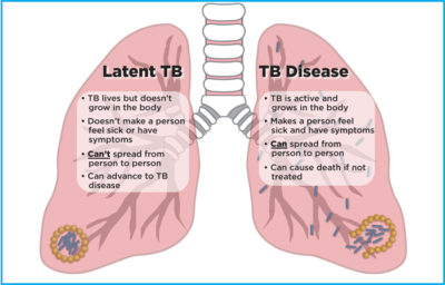 Illustration of About TB Disease?