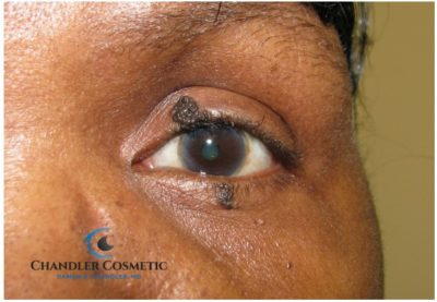 Illustration of Can A Mole On The Eyelid Be Operated On?