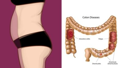 Illustration of Distended Stomach Like An Abscess In The Stomach?