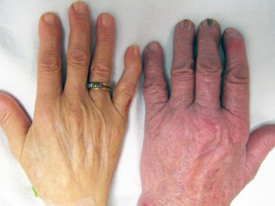 Illustration of The Cause Is Often Dizziness And Yellowed Palms?