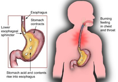 Illustration of Enlarged Stomach And Stomach Acid?