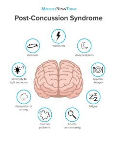 Illustration of Symptoms Of People Who Have A Concussion?
