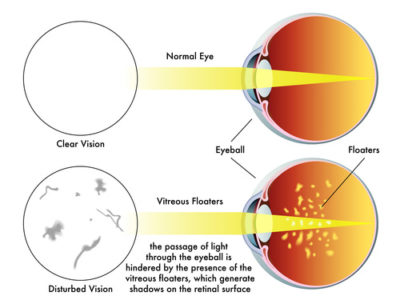 Illustration of Seeing Spots / Spots That Block Vision?