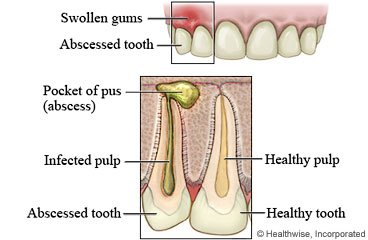 Illustration of How To Deal With Toothache And Swollen Gums?