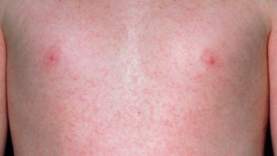 Illustration of Child's Body Appears Red Rash Accompanied By Many Small Bumps?