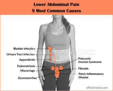 Illustration of Causes Of Left Abdominal Pain?