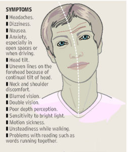 Illustration of Headaches And Nausea When Something Moves In The Eye?
