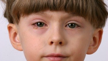 Illustration of Red Eyes In Children Aged 6 Years Due To Playing Gadgets?