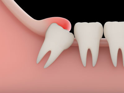 Illustration of What Is The Risk Of Pulling Teeth By Force?