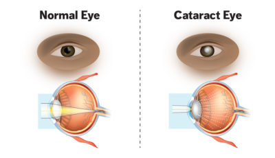 Illustration of The Right Eye Cannot Be Opened And Tears After Cataract Surgery?