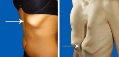Illustration of The Left Ribs Protrude And The Left Chest Appears Swollen?
