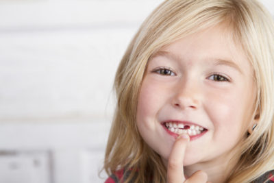 Illustration of Missing Teeth In Children Aged 2 Years?